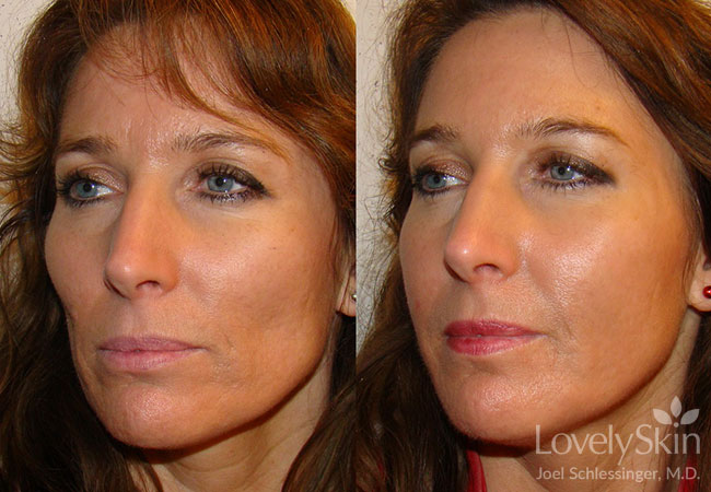 Omaha Cosmetic Surgery Juvederm Voluma Xc Skin