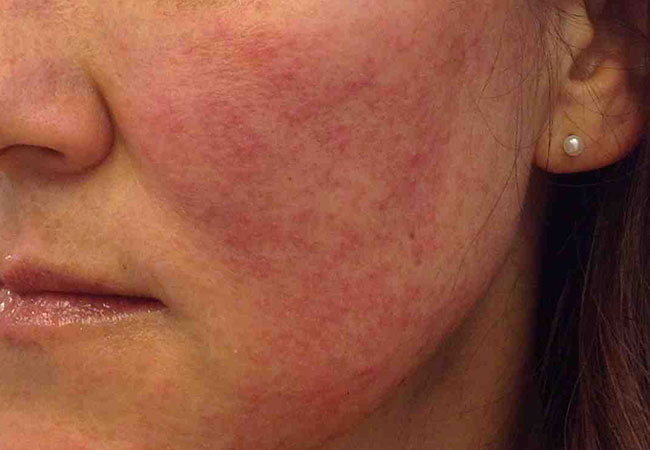 Causes of facial rashes