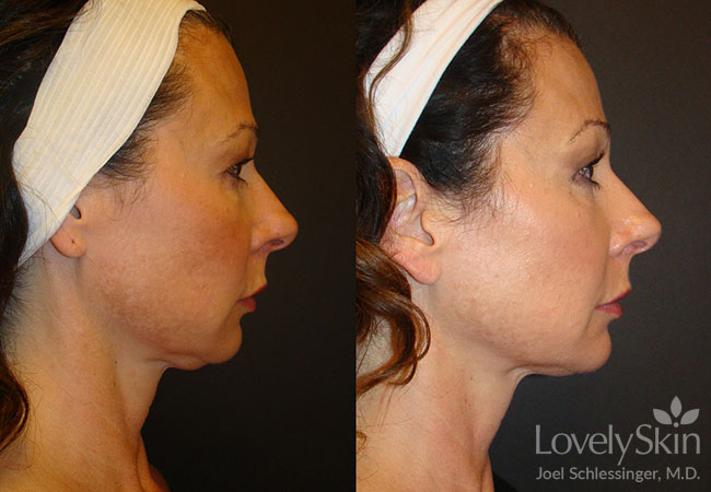 Omaha Cosmetic Surgery - Ultherapy Skin Tightening | Skin Specialists PC