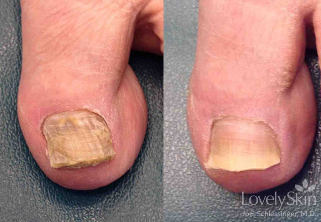 Omaha Dermatology Toenail Fungus Treatment Skin