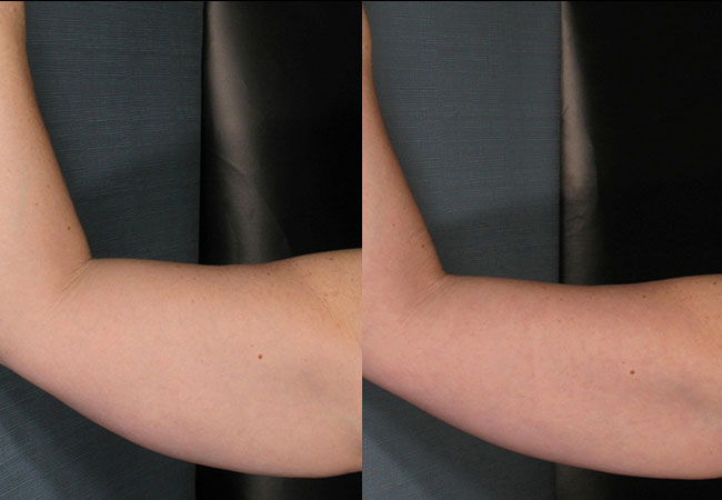 Before and after VelaShape treatment. Photo courtesy of Dr. Brightman.