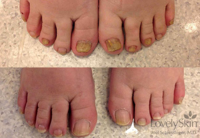 Toenail Fungus Before And After Photos 4