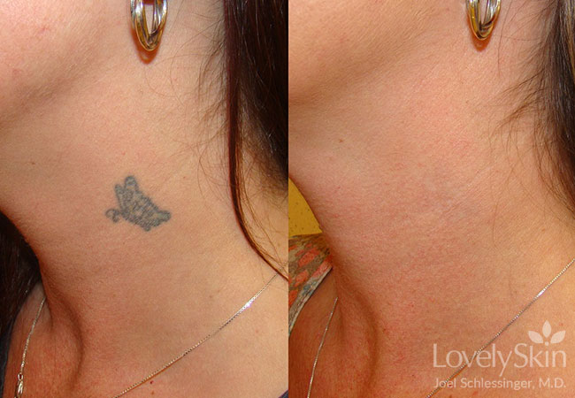 Omaha Cosmetic Surgery - Tattoo Removal | Skin Specialists PC