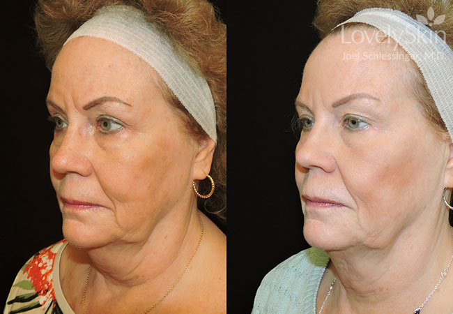 Kybella Chin Treatment