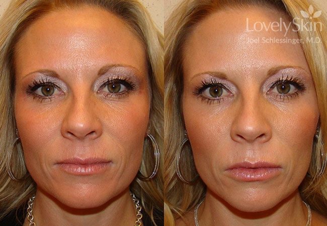 Omaha Cosmetic Surgery - Restylane Silk | Skin Specialists PC