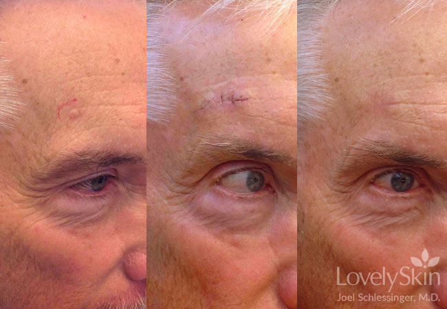 Skin Cancer Before and After Photos 5
