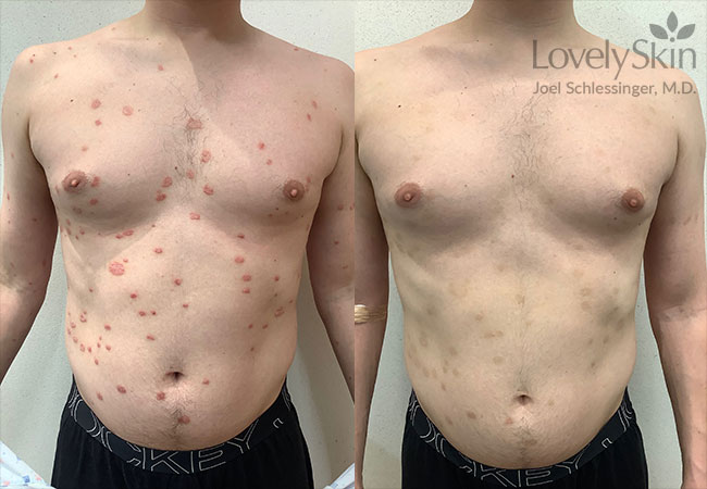 Psoriasis Before and After Photos 7