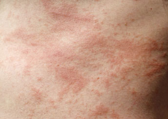 Rash caused by poison ivy