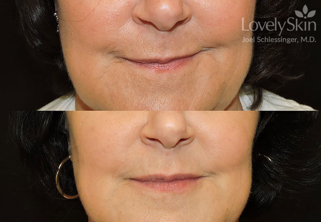 Juvederm Volbella Before and After Photo 4
