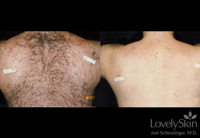 Omaha Cosmetic Surgery Laser Hair Removal Skin Specialists Pc