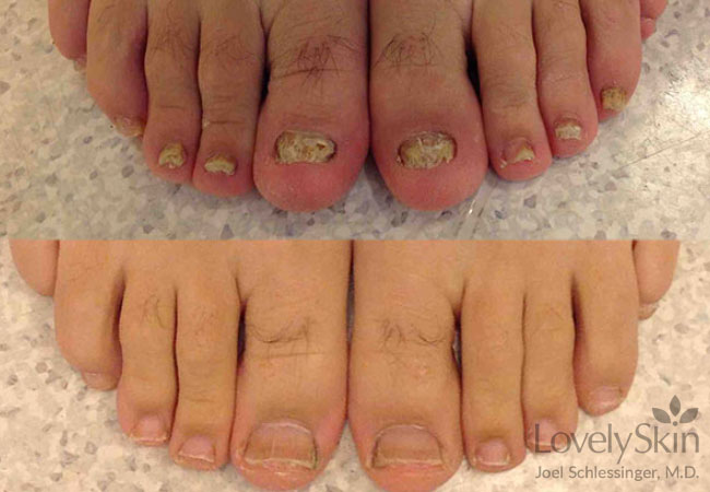 Toenail Fungus Before And After Photos 3