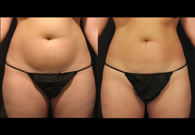 Before and after VelaShape treatment. Photo courtesy of Dr. Adatto.