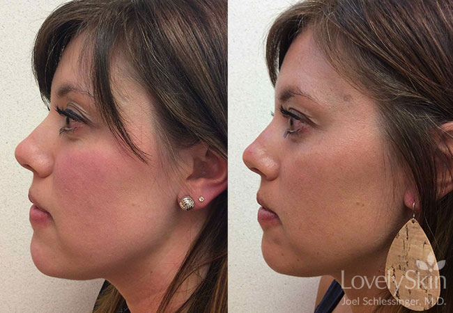 Rosacea Treatment - Before and After