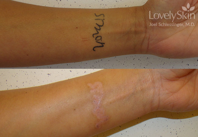 Before and after 1 single treatment and 2 stacked treatments.