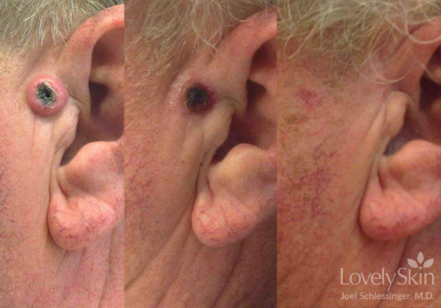 Skin Cancer Before and After Photos 1