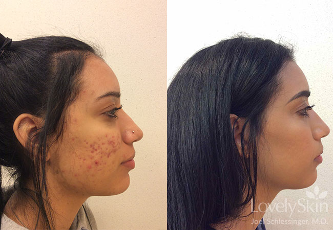 Accutane Treatment