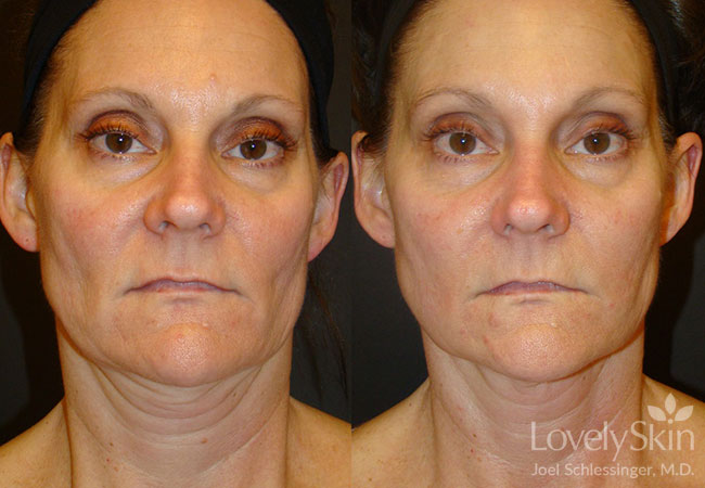 Before and after two full face Ultherapy treatments.