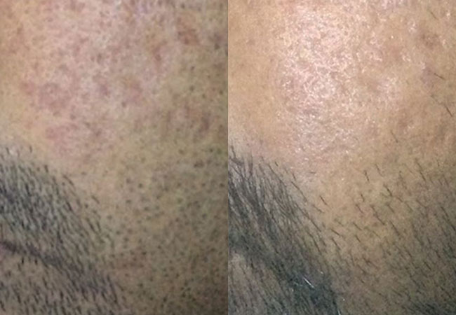 EndyMed Microneedling Before & After Photo Courtesy of Dr. David Pudukadan