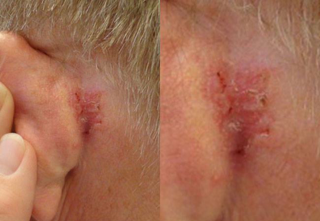 Basal Cell Carcinoma behind the ear