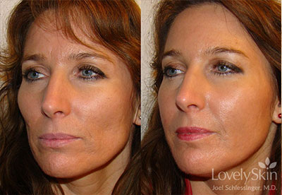 Before And After Gallery Skin Specialists Pc Omaha