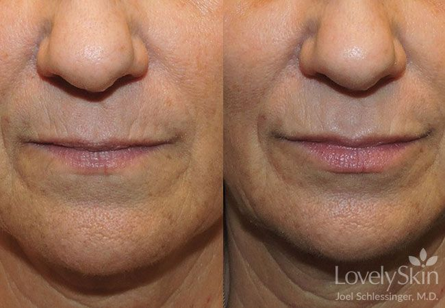 Juvederm Volbella Before and After Photo 1