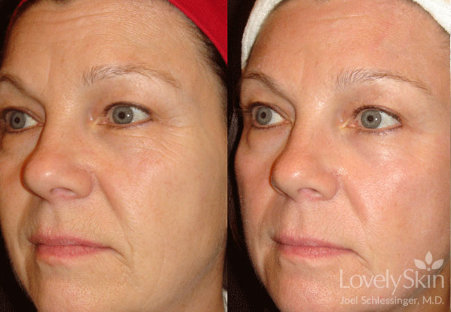 Omaha Cosmetic Surgery Fraxel Laser Treatment Skin Specialists Pc