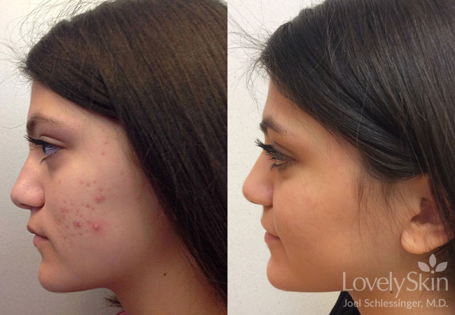 LovelySkin Luxe Treatment