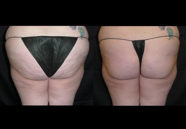 Before and after VelaShape treatment. Photo courtesy of Dr. Winter.
