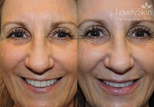 Juvederm Volbella Before and After Photo 2